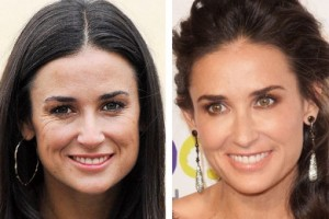 Demi Moore Plastic Surgery Before After