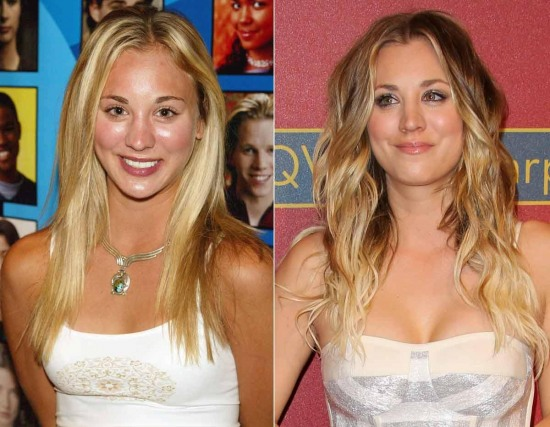 Kaley Cuoco Plastic Surgery Before and After