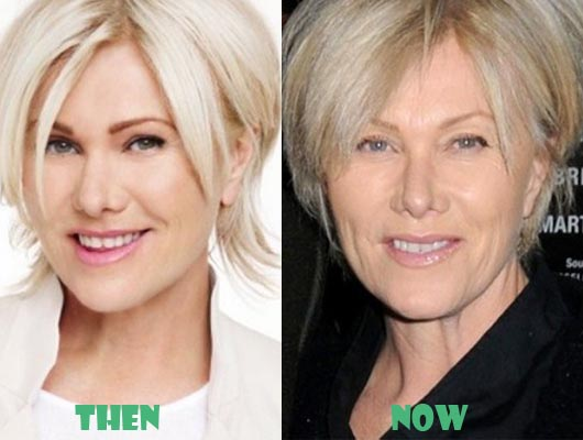 Deborra-Lee Furness Plastic Surgery Before After