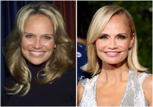 Kristin Chenoweth Plastic Surgery Before After