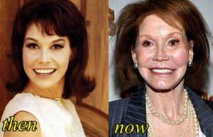 Mary Tyler Moore Plastic Surgery Before After