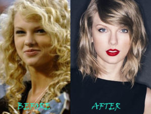 Taylor Swift Plastic Surgery Before After
