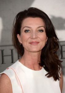Michelle Fairley Plastic Surgery Before After
