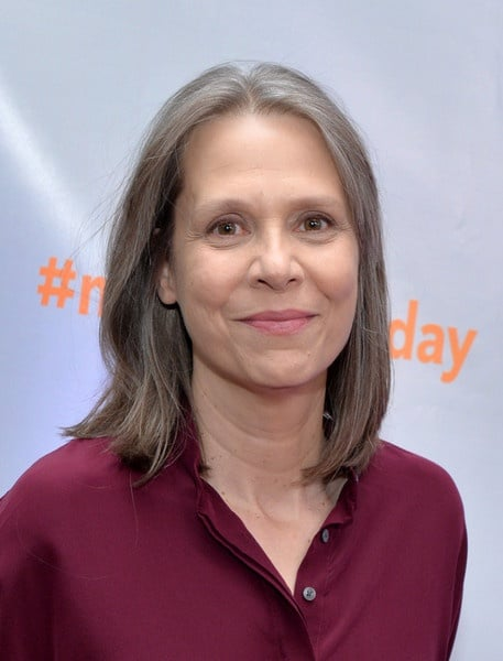 Amy Morton Plastic Surgery Before After