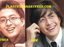 Bae Yong Joon Facelift Plastic Surgery