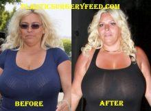 Beth smith breast