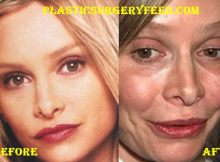 Calista Flockhart Lips Surgery