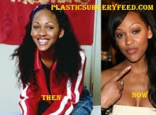 Meagan Good Botox