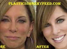 Colleen Dominguez Facelift Surgery