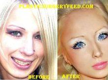Valeria Lukyanova Barbie Surgery