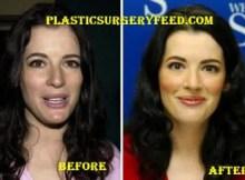 Nigella Lawson Botox