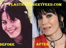 Joan Jett Botox
