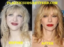 Courtney Love Facelift and Chin Implants