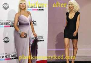 Christina Aguilera Liposuction