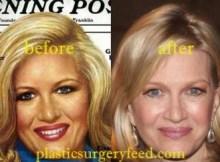 Diane Sawyer Facelift