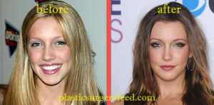 Katie Cassidy Nose Job