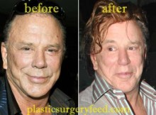 Mickey Rourke Facelift