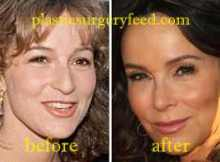 Jennifer Grey Lip Injection