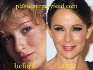 Jennifer Grey Nose Job