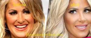 Kim Zolciak Facial Filler