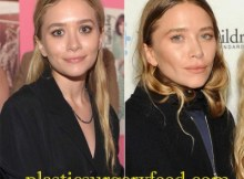 Mary-Kate Olsen Nose Job