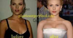 Scarlett Johansson Breast Implant