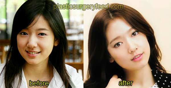 Park Shin Hye Cosmetic Surgery 1