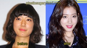 Park Shin Hye Cosmetic Surgery 2
