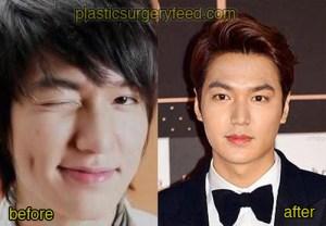 Lee Min Ho Plastic Surgery Feed 3