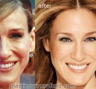 Sarah Jessica Parker Botox Plastic Surgery