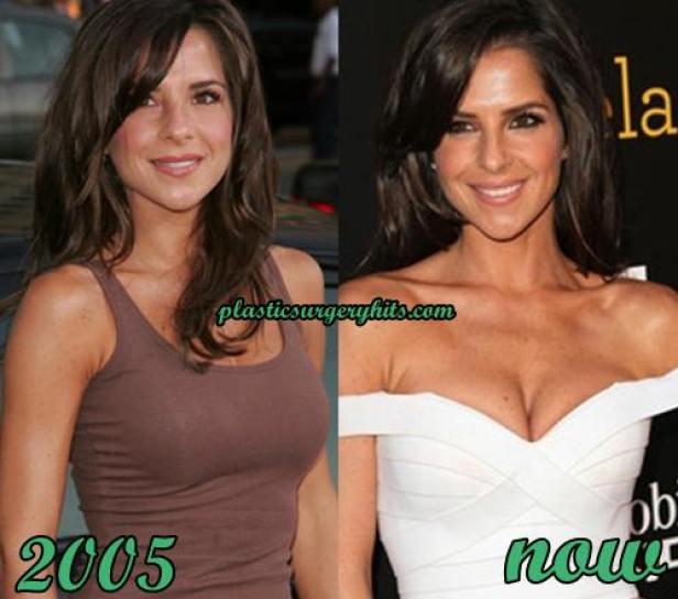 https://i1.wp.com/www.plasticsurgeryhits.com/wp-content/uploads/2016/02/Kelly-Monaco-Breast-Implants.jpg?resize=616%2C544
