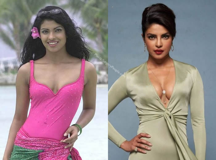 Has Priyanka Chopra Had Breast Augmentation