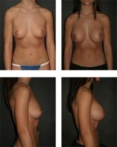 breastimplantssmall