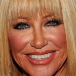 Suzanne Somers Plastic Surgery Before And After