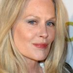 Beverly D'Angelo Plastic Surgery Before & After