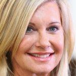 Olivia Newton-John Plastic Surgery Before & After