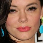 Rose McGowan Plastic Surgery Before & After