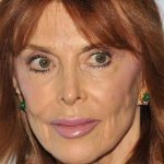 Tina Louise Plastic Surgery Before & After