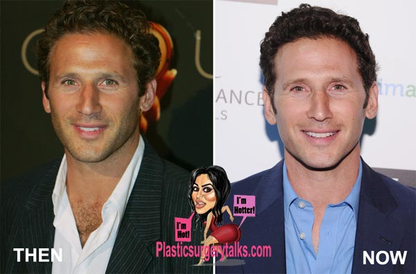 Mark Feuerstein Plastic Surgery