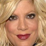Tori Spelling Plastic Surgery – Botched Breast Implants