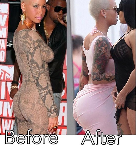 Amber Rose Butt Impplants