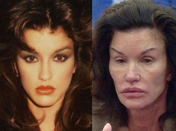 janice dickinson before and after plastic surgery
