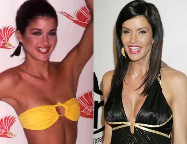 janice dickinson breast enlargement
