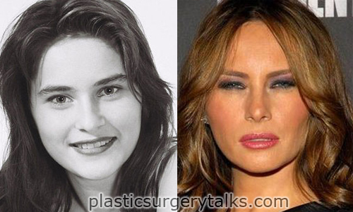 melania trump before and after plastic surgery