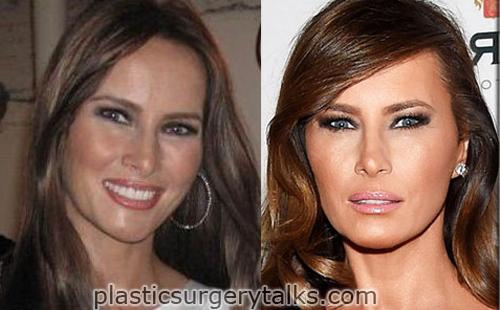 melania trump plastic surgery procedure