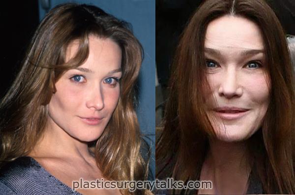 carla bruni cosmetic surgery