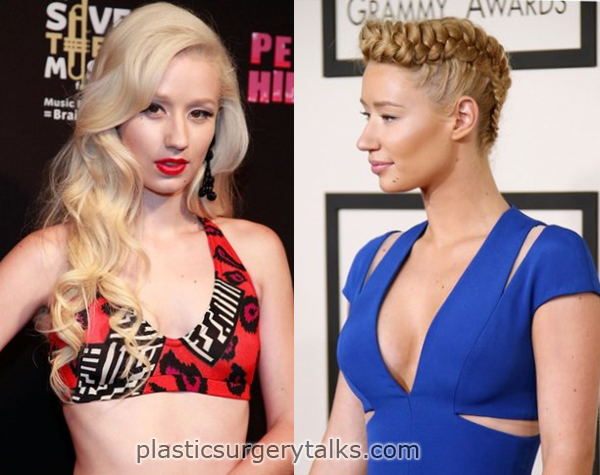 iggy azalea plastic surgery augmentation