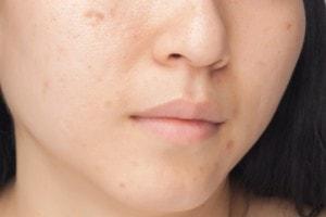 Hautveränderungen