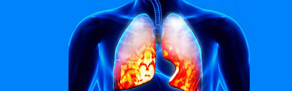 Pneumonia Symptoms to Look Out For