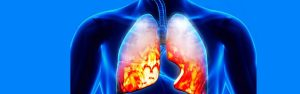 Pneumonia Symptoms You Need To Look Out For